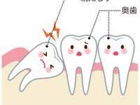 親知らずの抜歯治療