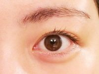 目の充血(結膜炎) Dr Farzad Jazayeri