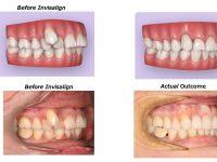 歯の移動No.2