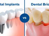⚫️インプラント歯科治療、日本と違ってこちらでは盛んです!