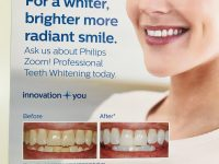 ●ズーム歯のホワイトニング。キャッシュバック終了間近で2月チャンス!!