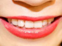 歯科検診&クリーニングがお得♪歯の健康と美をキープしよう!