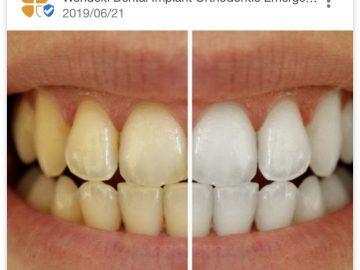 ●8月末迄!歯のホワイトニングやクリー二ング割引