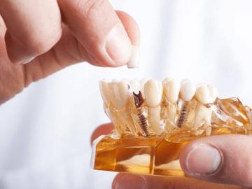 世界的シェアのインプラント講師本人から歯科治療や矯正治療を!