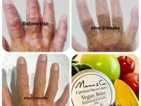 ヴィーガンバームによるお肌の回復力