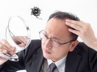日本の成人男性のおおよそ3人に1人が男性型脱毛症で悩んでいる
